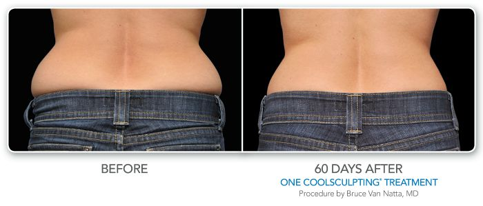 before and after coolsculpting back