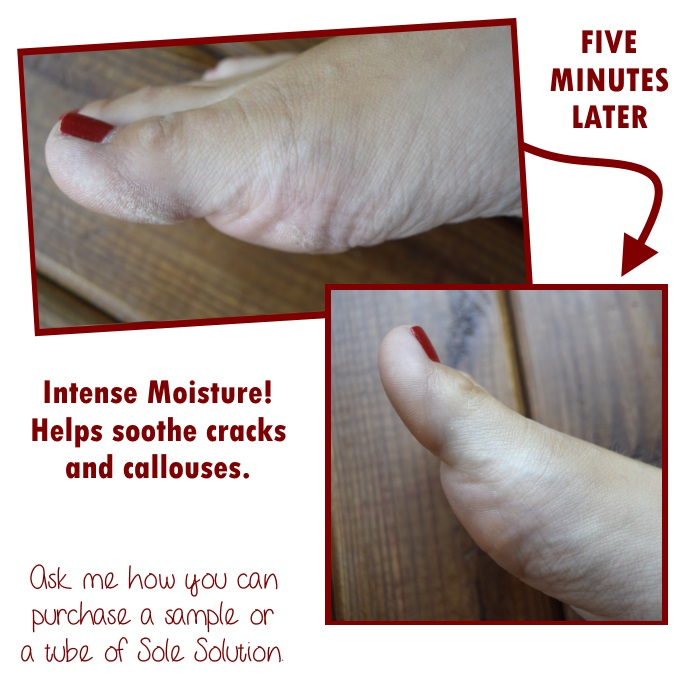 The Sole Care Solution that every foot needs!