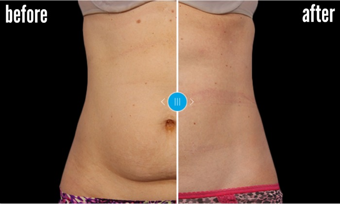 before and after coolsculpting from site