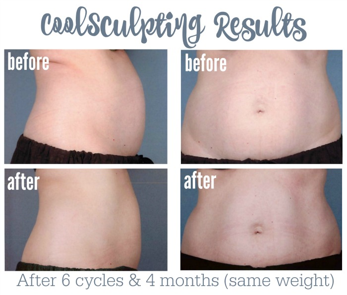 coolsculpting results final