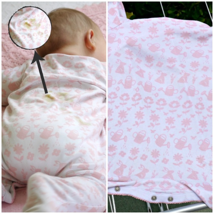 How to get rid of baby clothes stains